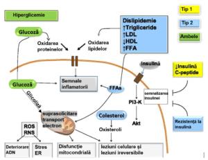 complicatii cronice neuropatiile diabetice